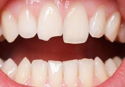 Mẻ răng có điềm gì và nên đánh con nào dễ trúng